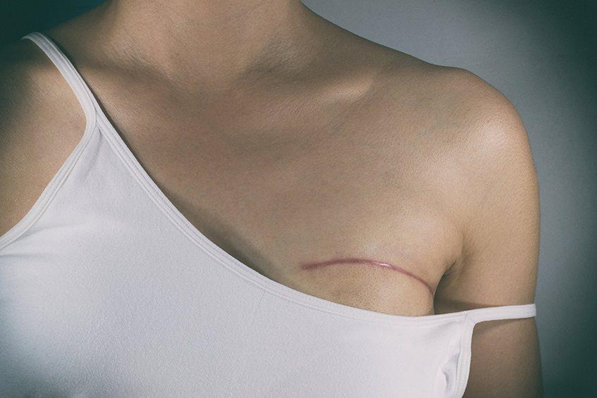 Tipps zur Narbenpflege