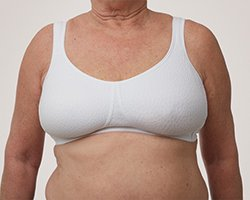 solution for uneven breast after breast conserving surgery – lumpectomy prosthesis by Amoena