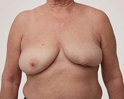 partial mastectomy pictures - Breast Asymmetry after lumpectomy surgery