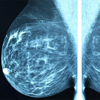 Demystifying the Mammogram Controversy
