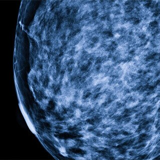 Mammograms detect fewer tumors among cancer survivors